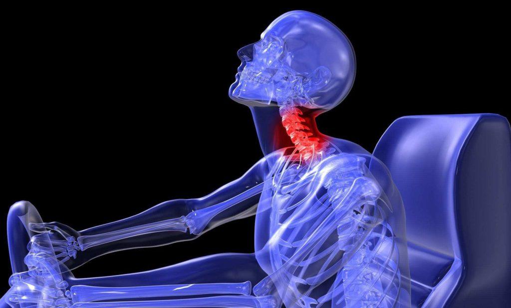 Cómo sufrir un esguince o latigazo cervical en un accidente de tránsito y tratamiento